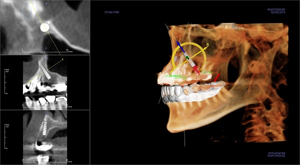 3D scan of dental implant at Rogue Valley Dental Center