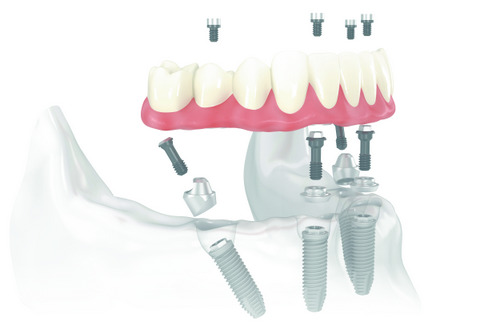 Diagram of All-on-4 dental implant and prosthetic from Rogue Valley Dental Center