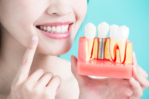 Woman holding a dental implant model at Rogue Valley Dental Center in Medford, OR