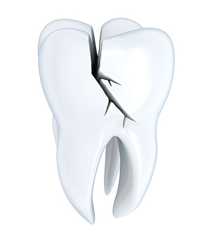 A Cracked Tooth Can Be Saved with Several Options